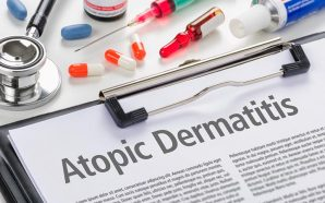 Atopic Dermatitis Eczema Treatments