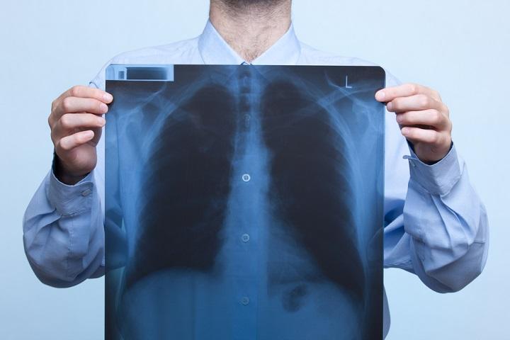 Rheumatoid Arthritis Pulmonary Fibrosis