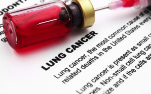 Nivolumab NSCLC Lung Cancer Treatments
