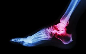 Treatment for Rheumatoid Arthritis Ankle Pain