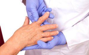 Treatment of Rheumatoid Arthritis Hand Pain